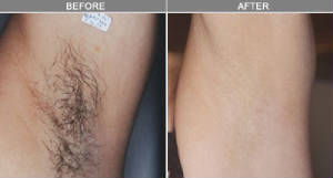 laser-before-after-04.jpg